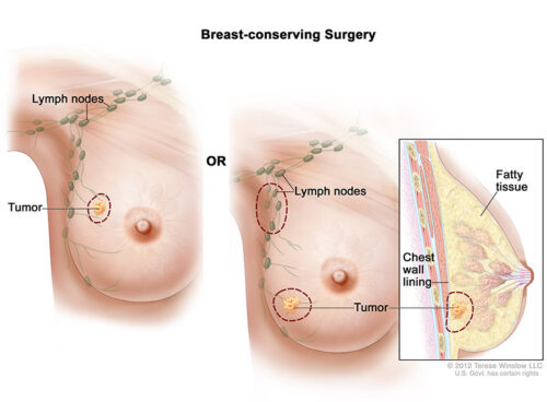 breast-sparing surgery
