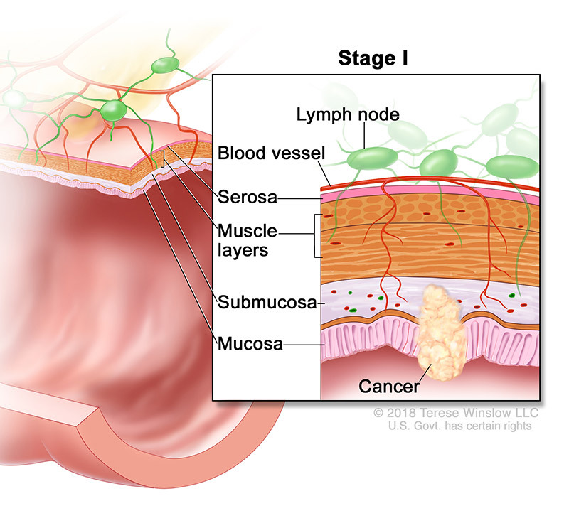 colorectal cancer stage 1