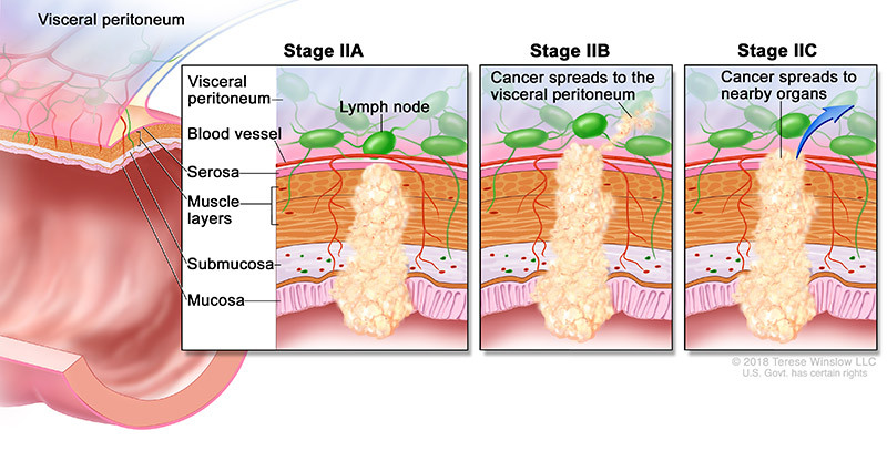 colorectal cancer stage 2a 2b 2c
