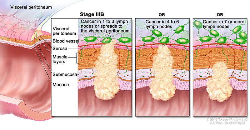 colorectal cancer stage 3b