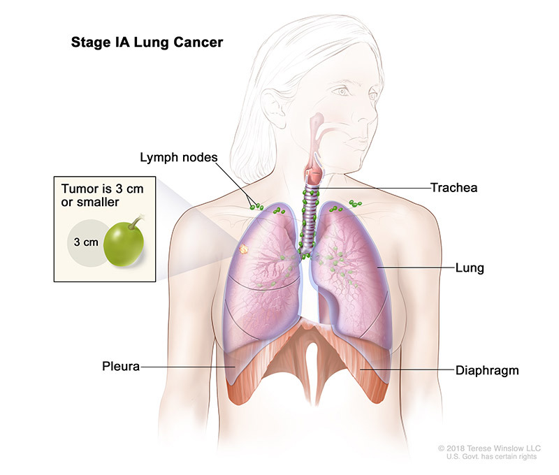 lung cancer stage 1a