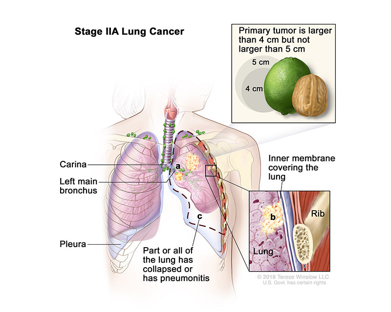 lung cancer stage 2a