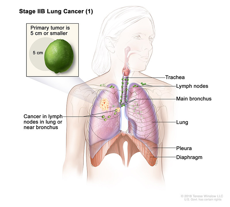 lung cancer stage 2b