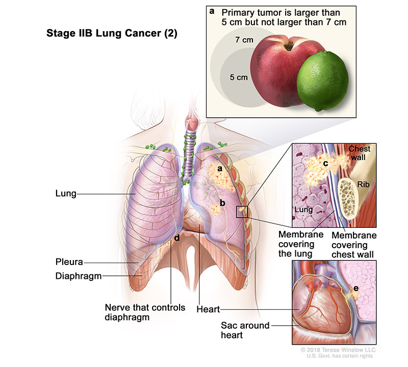lung cancer stage 2b2