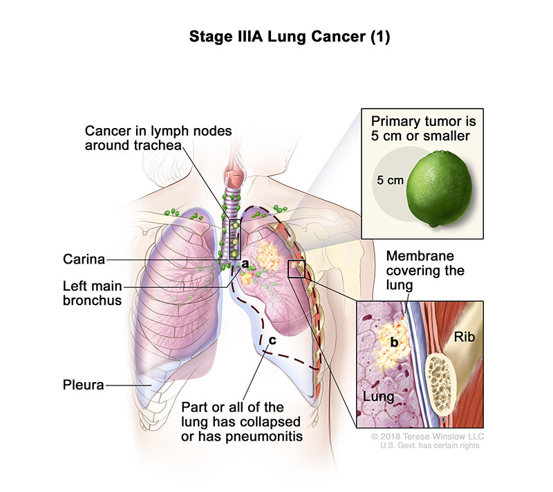lung cancer stage 3a1