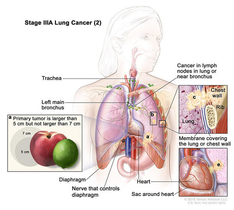 stage 3a2 lung cancer