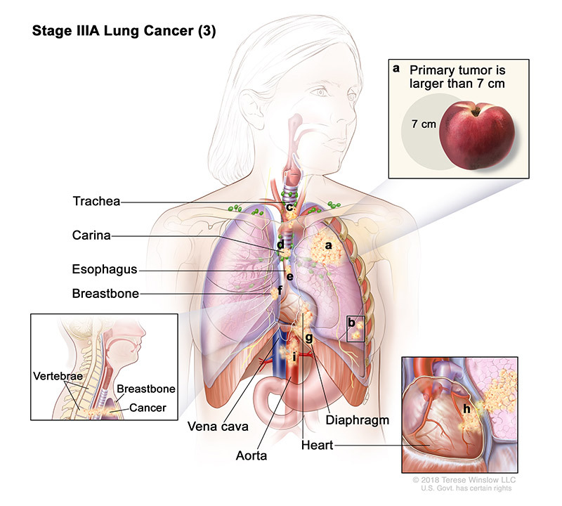 lung cancer stage 3a part 3