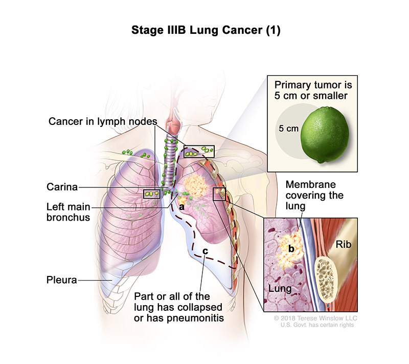 lung cancer stage3b part 1
