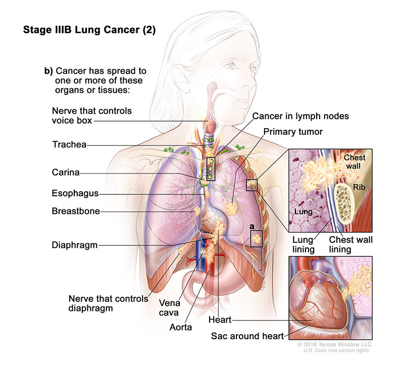 lung cancer stage3b part2