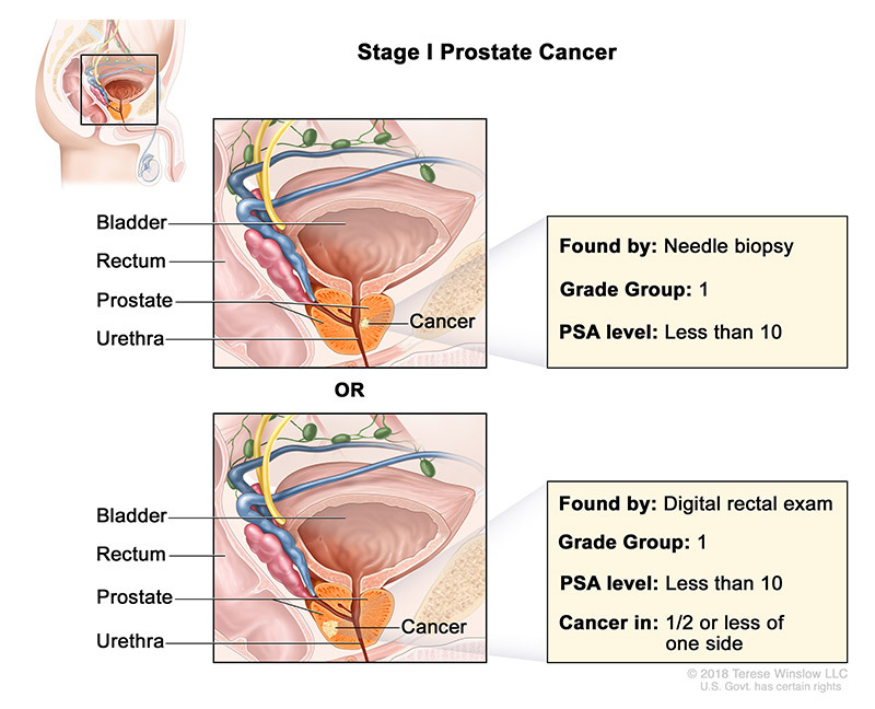 Prostate Cancer Stage 1