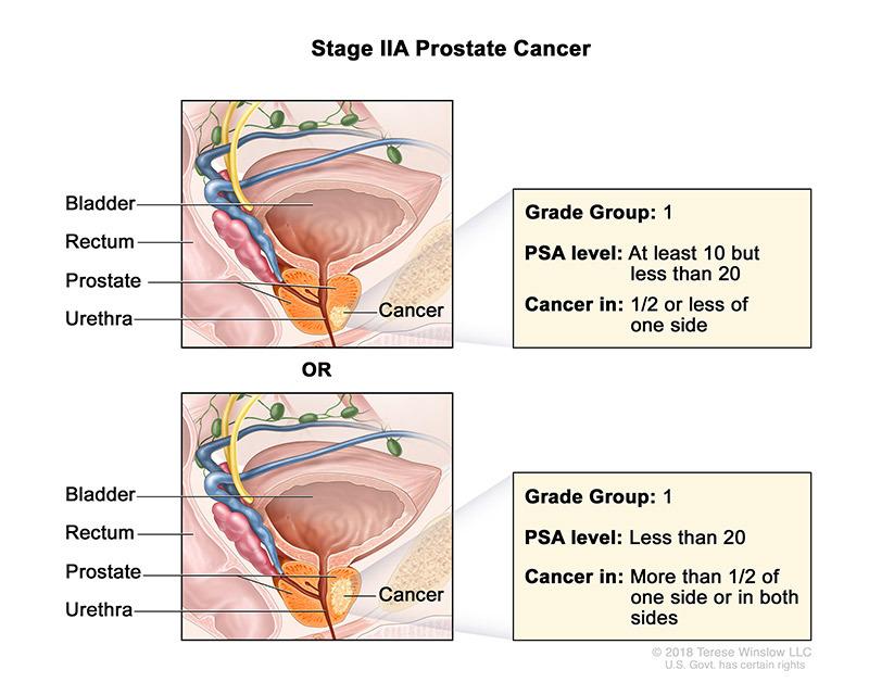 Prostate Cancer Stage IIA