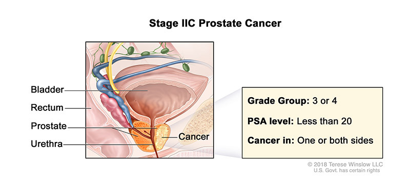 Prostate Cancer Stage IIC