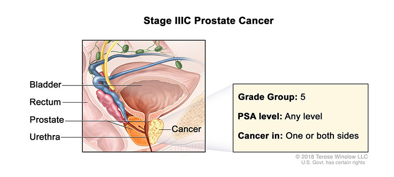 Prostate Cancer Stage IIIC