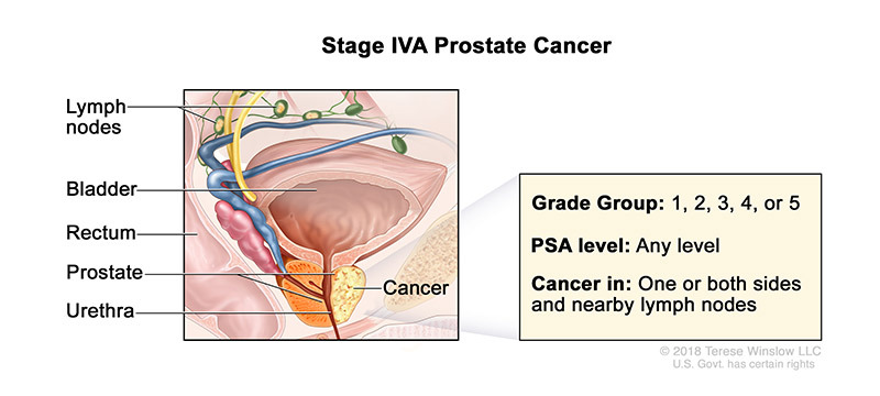 Prostate Cancer Stage IVA