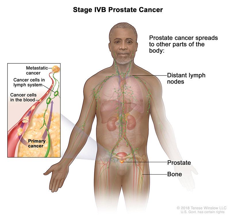Prostate Cancer Stage IVB